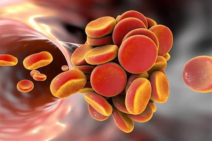 High Risk of Thrombosis in Myeloproliferative Neoplasms, Underlying Cause Still Unclear