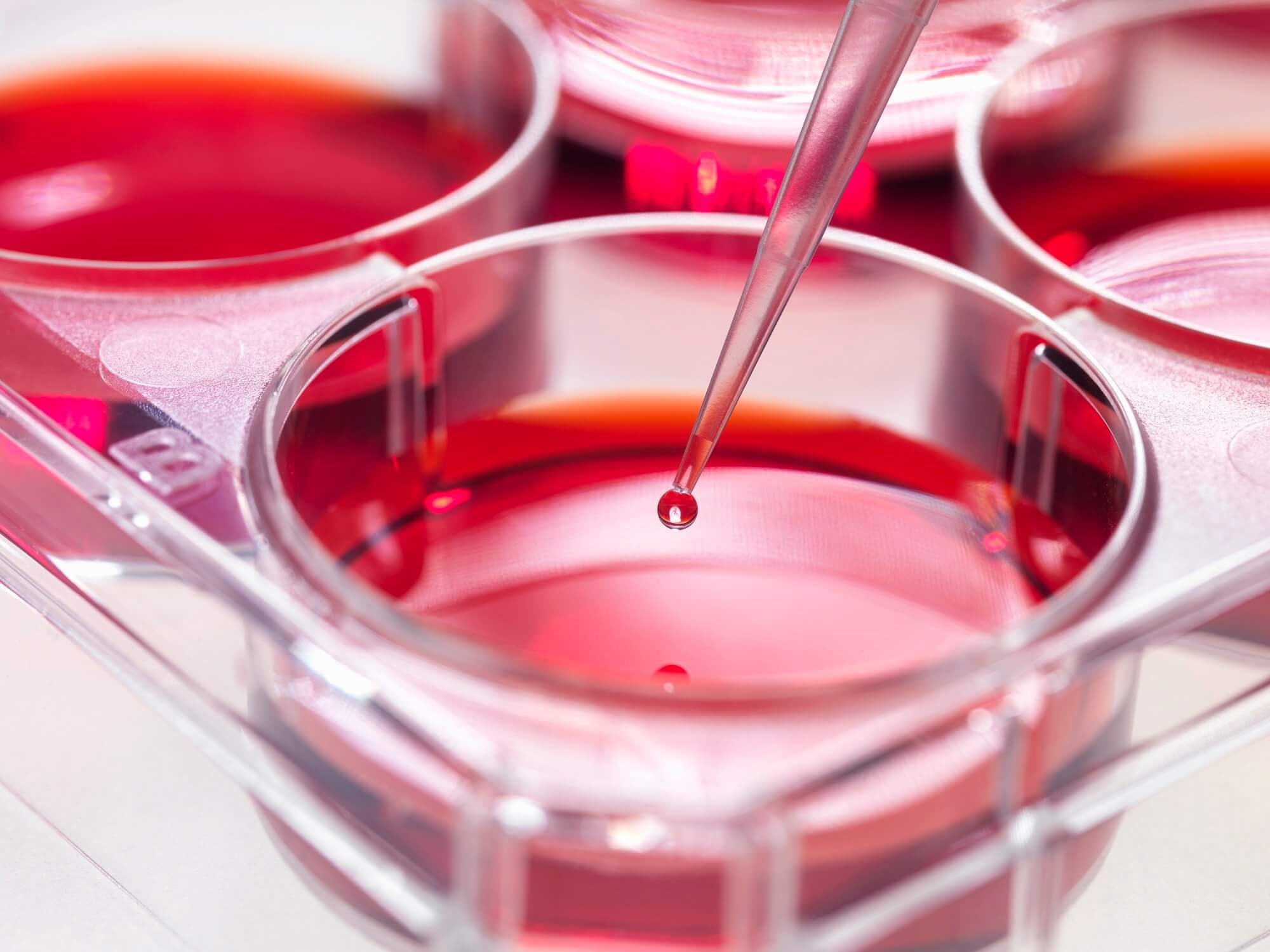 Peripheral Blood: An Alternative Source of Stem Cells in Thalassemia