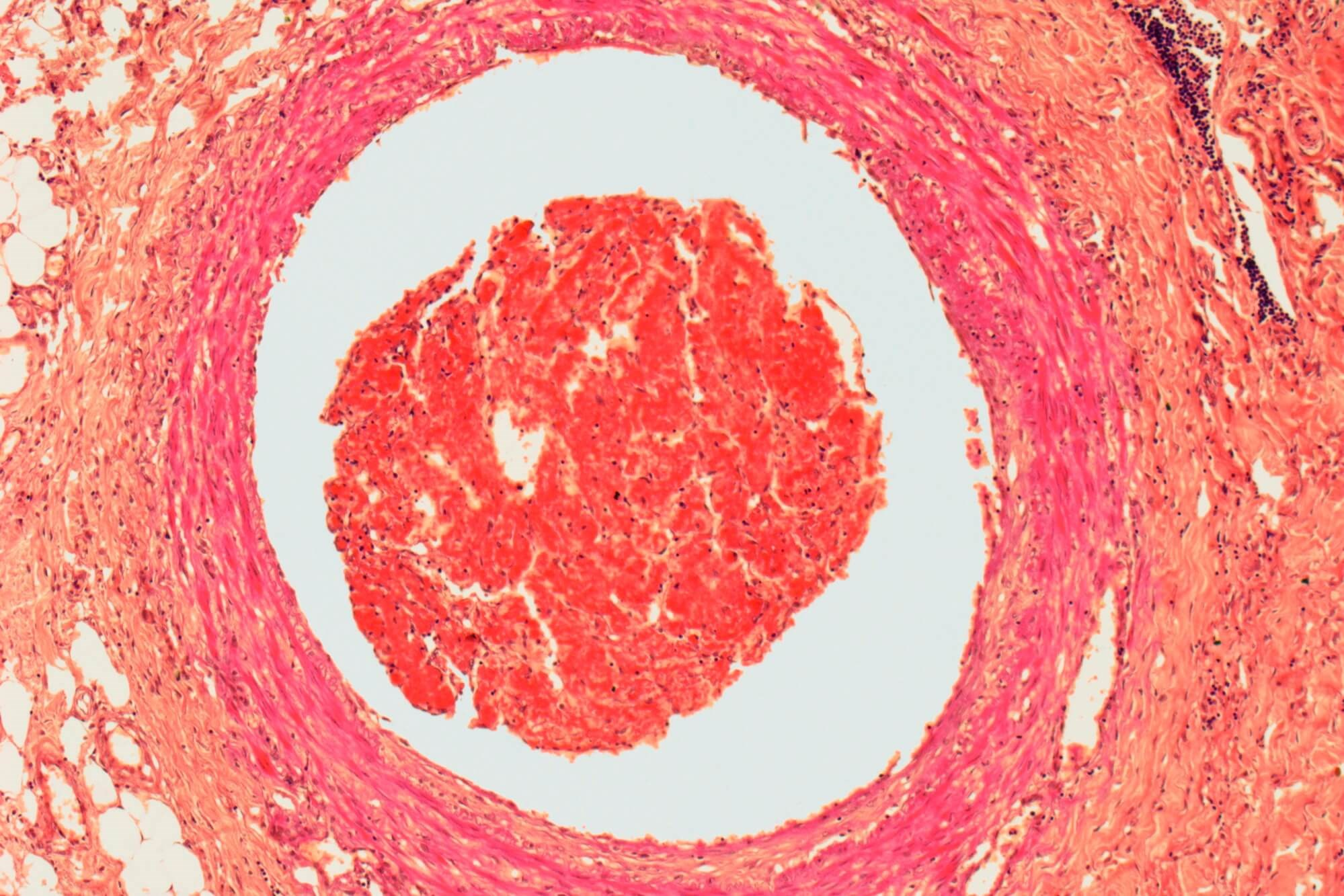 Splanchnic Vein Thrombosis May Increase Risk for Arterial Cardiovascular Events