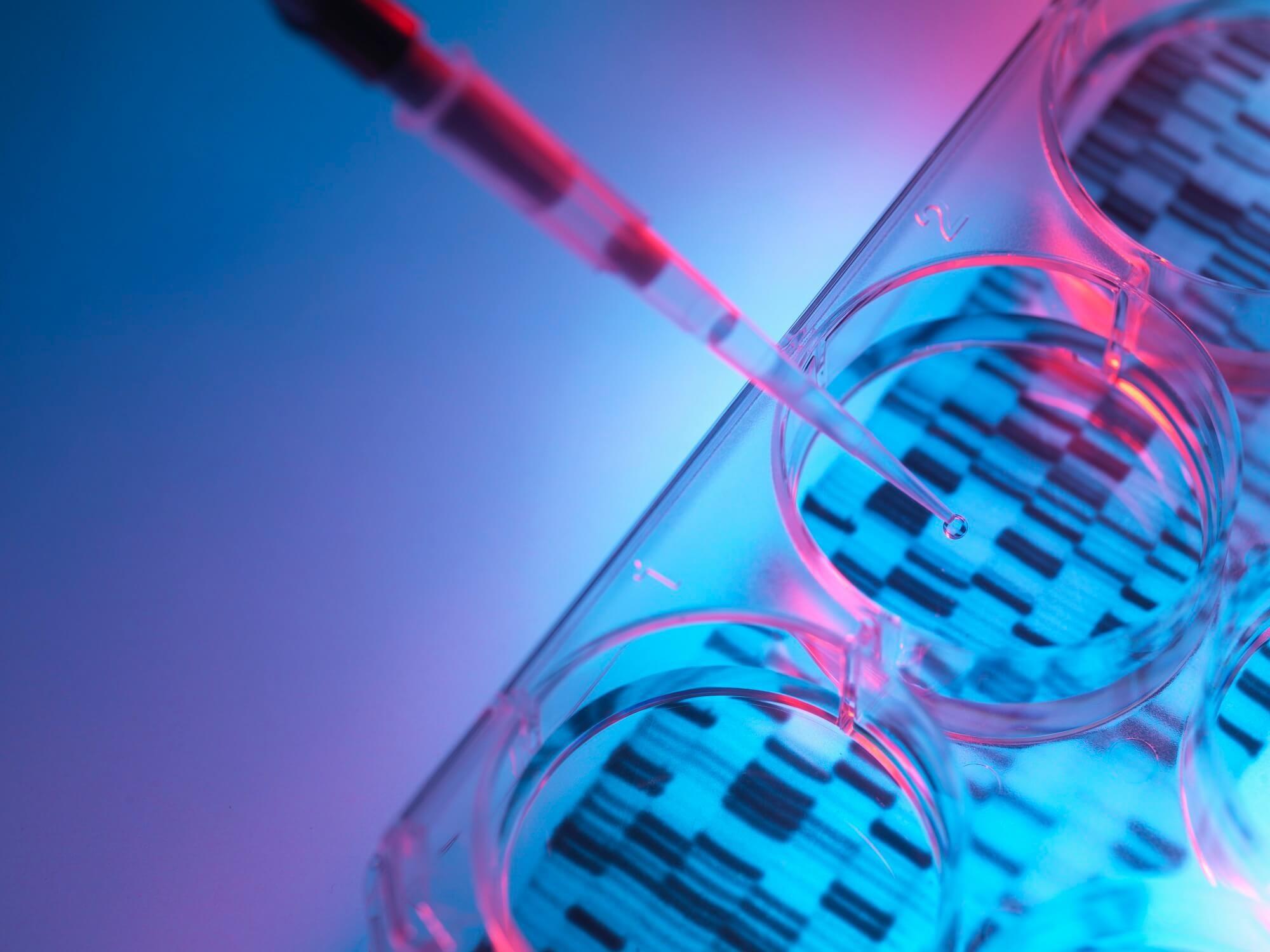Hemochromatosis Penetrance Decreased Over Time in French Cohort