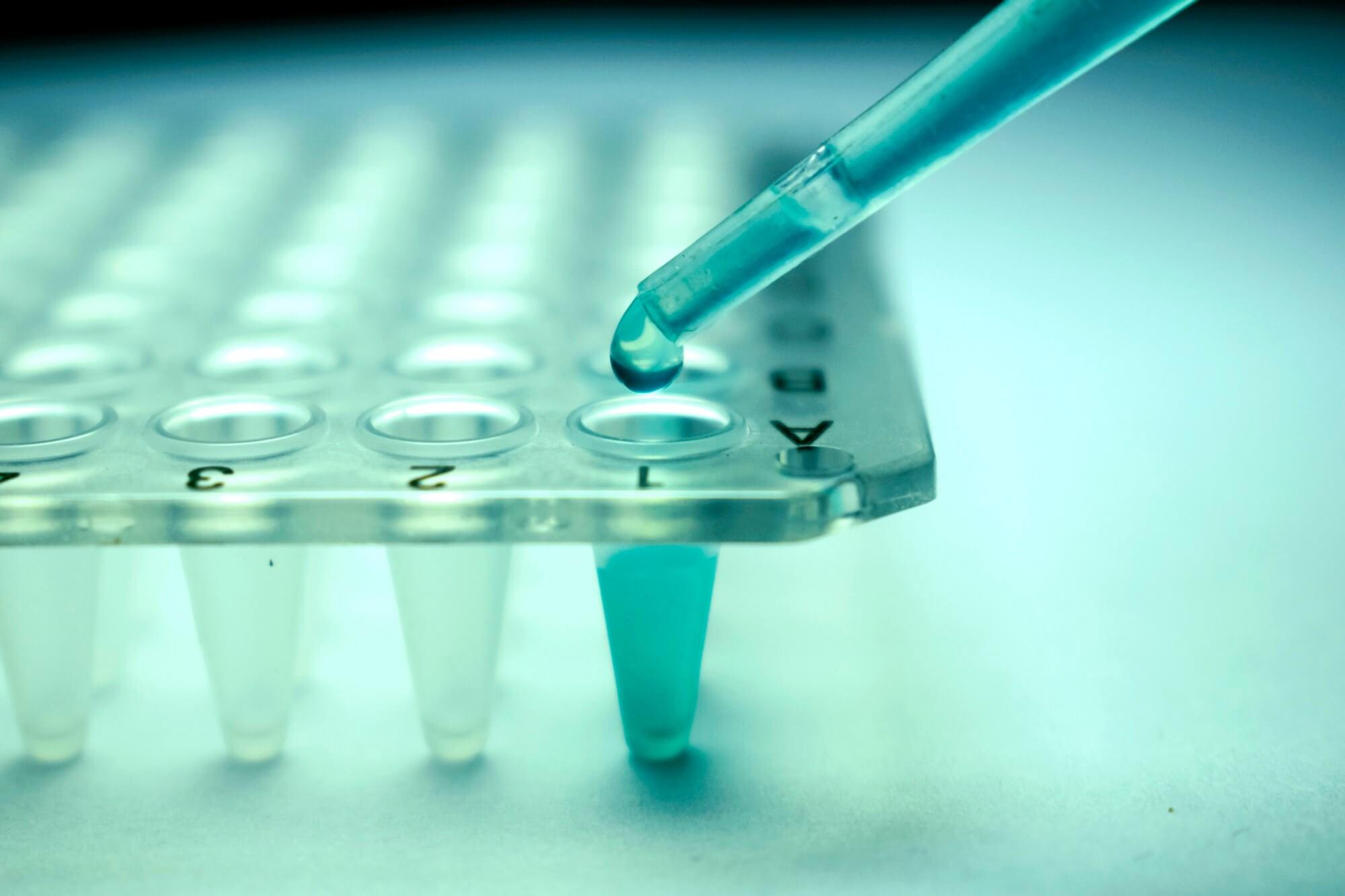 Single-Allele Mismatch May Decrease Non-Relapse Mortality in Unrelated Bone Marrow Transplantation