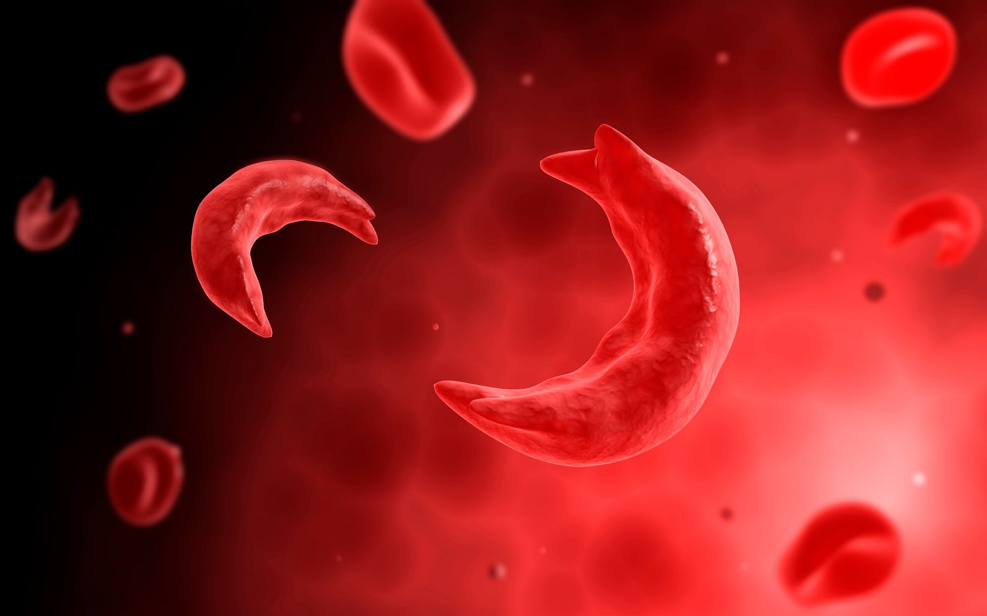 Sickle Cell Trait May Increase Risk for Some Adverse Clinical Outcomes