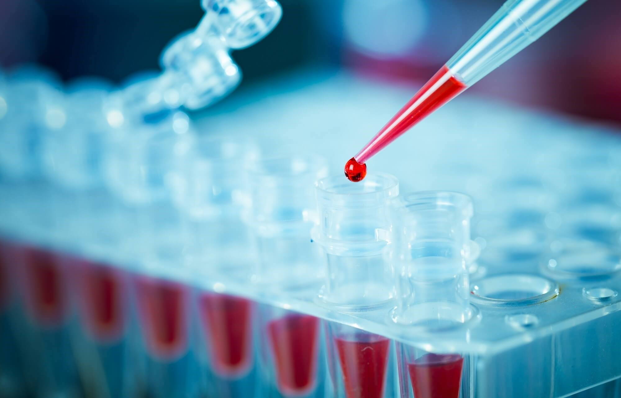 Assessing Measurable Residual Disease in Patients With Acute Lymphoblastic Leukemia