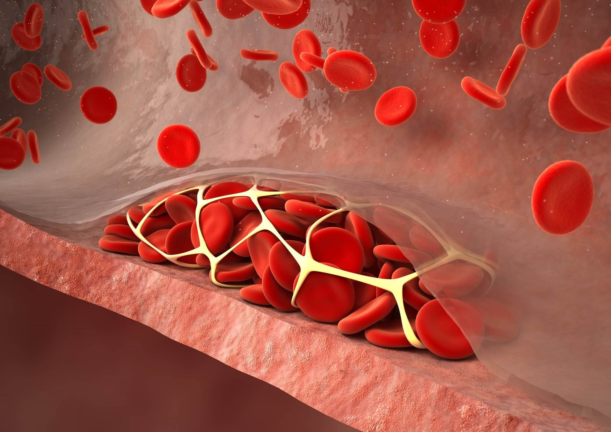Updated Clinical Practice Guidelines for Venous Thromboembolism: Pregnant and Pediatric Patients