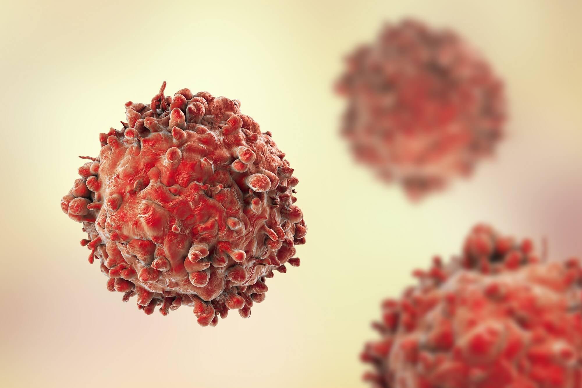 Ponatinib as a Treatment for Philadelphia Chromosome-Positive Acute Lymphoblastic Leukemia